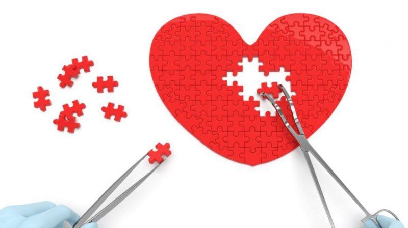 Myths About Cardiac Surgery